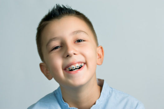 6 Tips for Keeping Your Braces Clean from Dunegan Orthodontics!