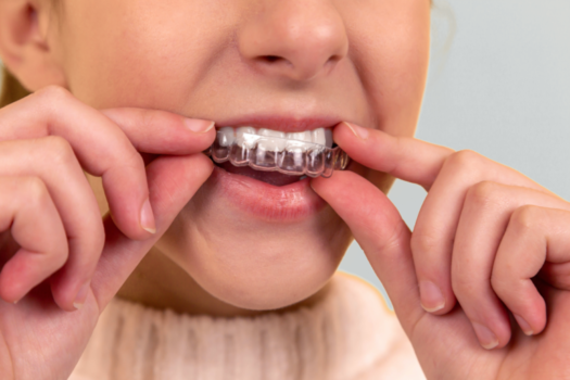 The Importance of Wearing Your Retainer After Orthodontic Treatment