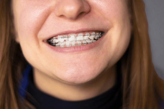5 Simple Tips to Relieve Sore Teeth After Braces Tightening