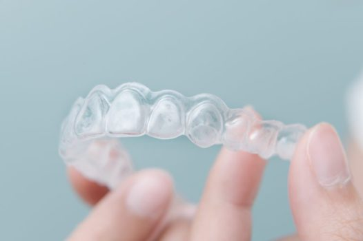 Why Your Teeth Could be Shifting After Braces or Invisalign Treatment