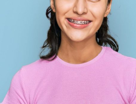 Braces 101: Everything You Need to Know to Get Started